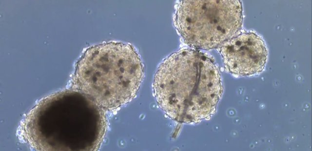heart-and-liver-organoids