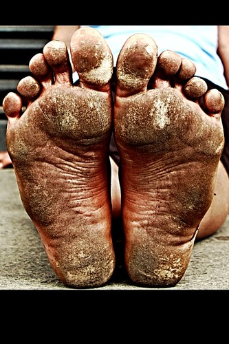 Tough Callous Dirty Feet  Just_go_Barefoot  Flickr
