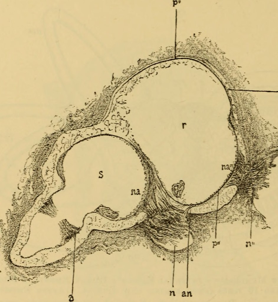 medium resolution of  image from page 607 of a text book of the diseases of the ear