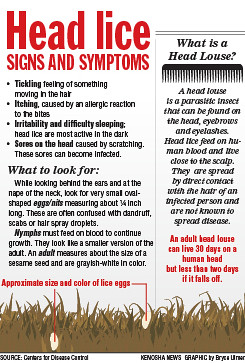 head lice signs and symptoms kenosha news infographic flickr