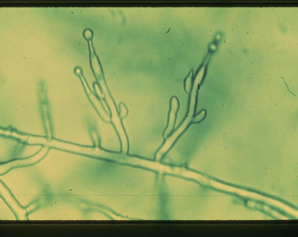 m2202 Byssochlamys sp Penicillate sporulation 1008X M