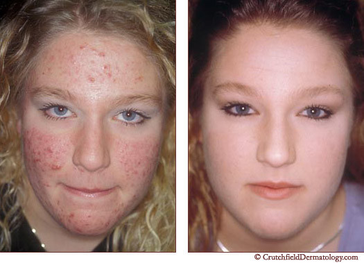 Acne Laser Treatment On Teenager With Very Sensitive Skin