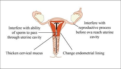 Copper IUDs Mechanisms of Action  Diagram of the uterus