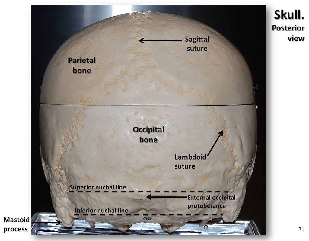 human skull landmarks diagram 2017 suzuki sv650 wiring posterior view with labels axial skeleton visual