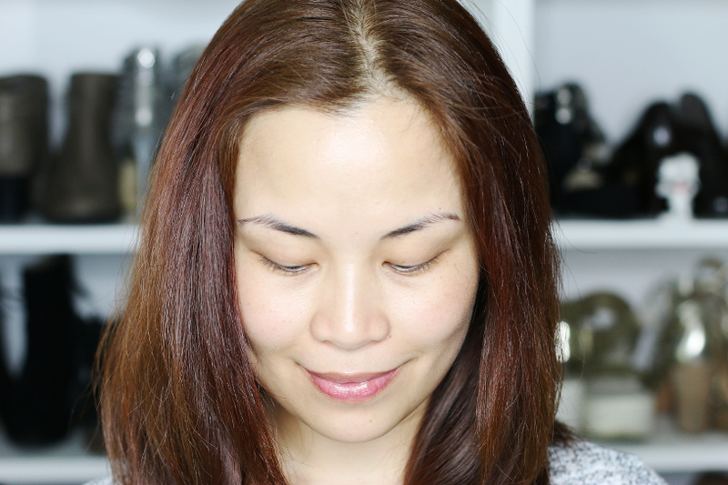 face-after-using-differin-acne-treatment-6