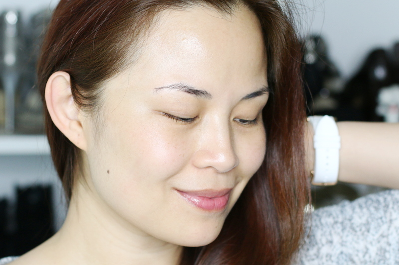 face-after-using-differin-acne-treatment-7