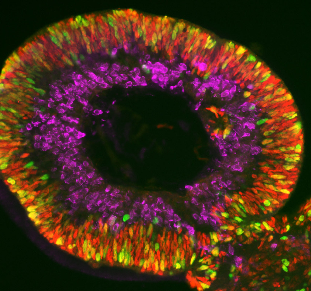 Retinal Organoids  A competition for radical ideas in the