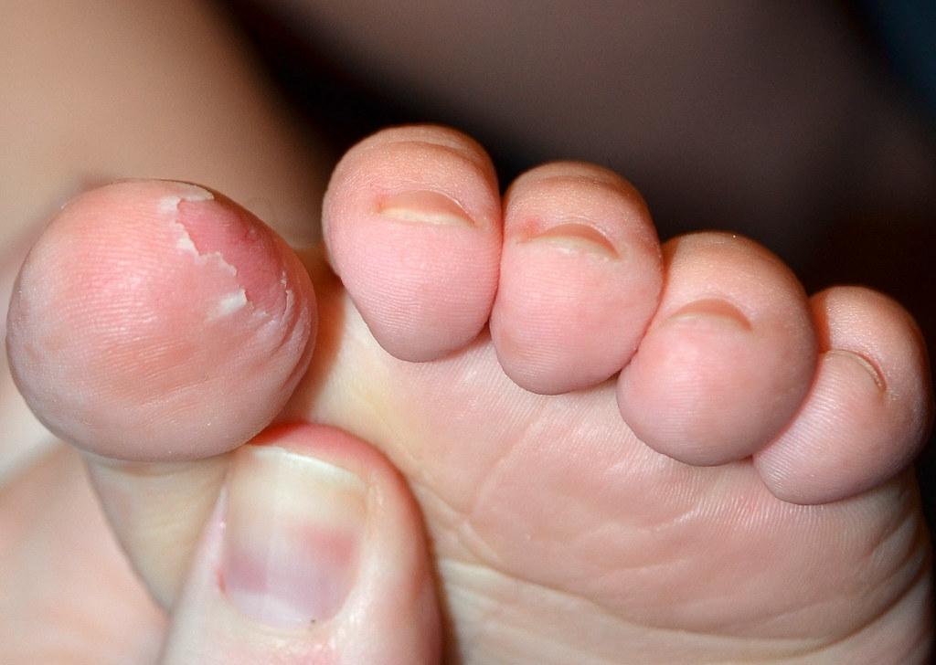 peeling skin from strep   Jillian   Flickr