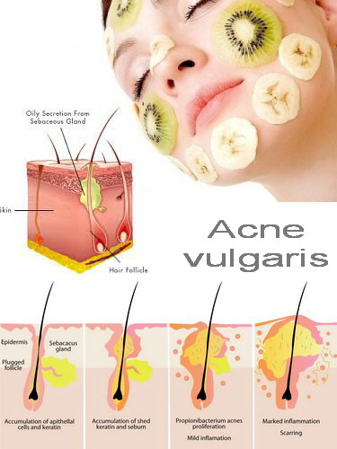 what causes acne diagram moody english units vulgaris can develop due to various such flickr by adams999