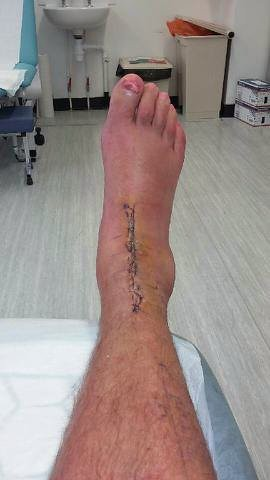 Now I've gone and broken my ankle : Talus - Singletrack ...