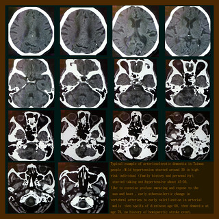 臺灣人特色的 血管性失智動脈硬化性腦病變 從脊椎動脈硬化開始 | 在美國行醫 不知看過多少阿茲海默型的失 ...