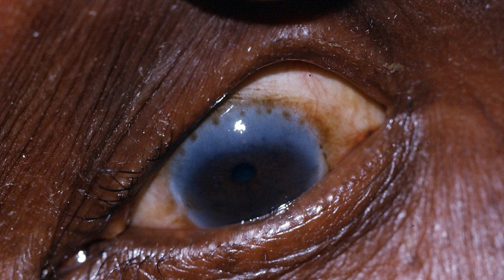 Herbert pits brown dots at the limbus due to trachoma l