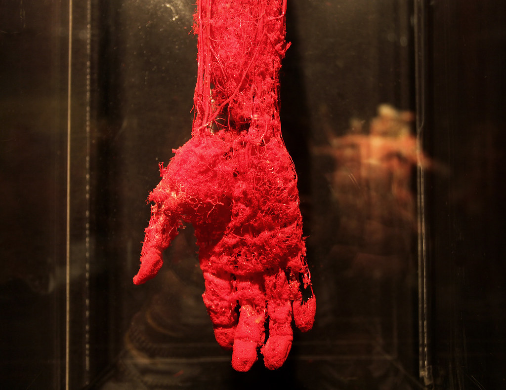Blood Vessel Configuration Of The Hand