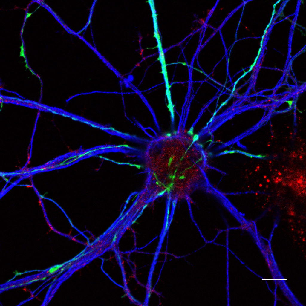 Neurons confocal fluorescence microscopy  Primary