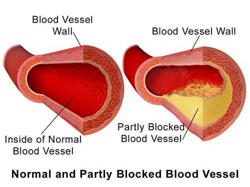 Diagram 1 Blausen_0052_Artery_NormalvPartially-BlockedVessel