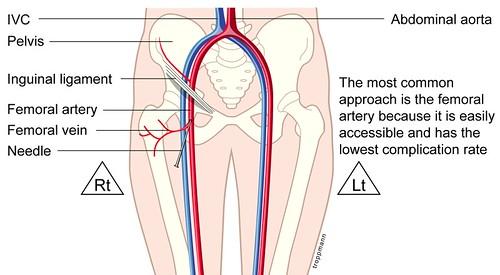 leg venous diagram hagstrom ultra swede wiring femoral vein cathetor | randy.troppmann flickr