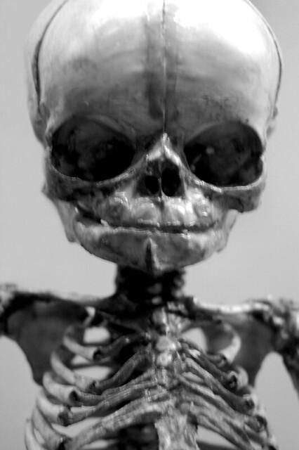 Infant skeleton National Museum of Health and Medicine