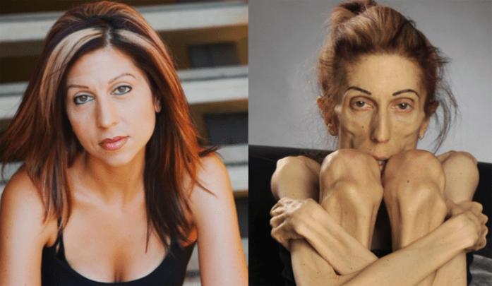 La anorexia y la bulimia: Rachael Farrokh