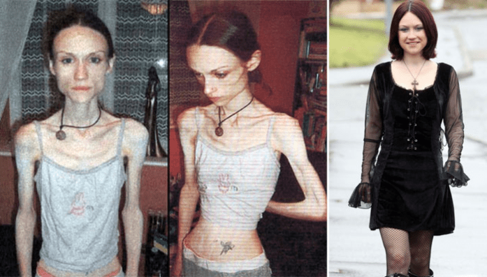 La anorexia y la bulimia: Lauren Bailey