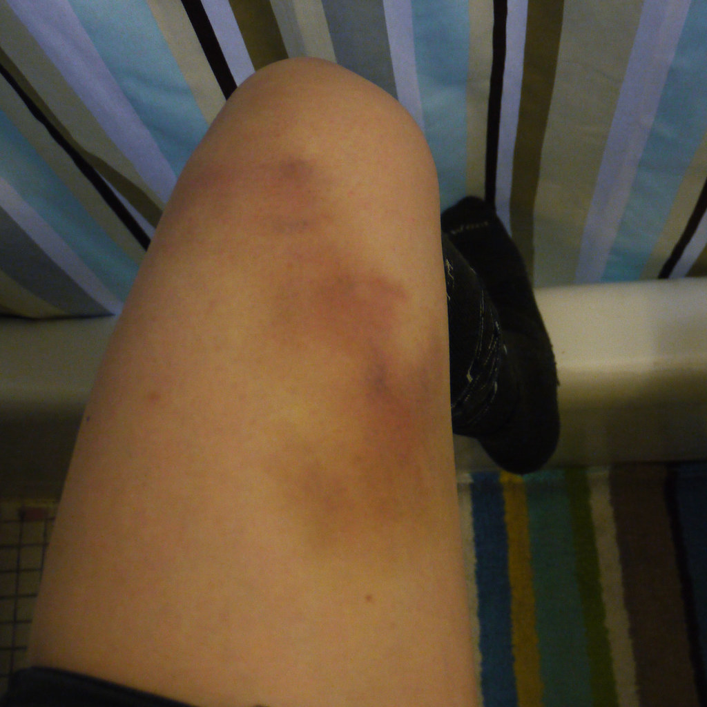 Bruise on wrong side of leg  So a bruise finally started