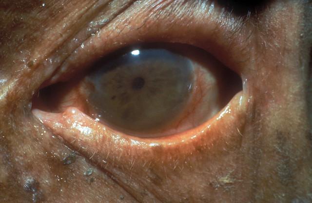 Chronic iritis in leprosy  Flickr  Photo Sharing