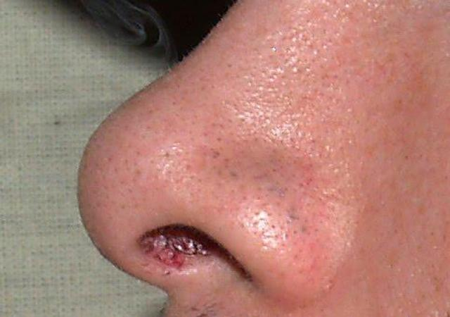 黑頭粉刺長都長不完,哪一種清粉刺的方法比較好?清粉刺可以用化學性去角質的方式,例如果酸換膚、A醇、外用A酸等等