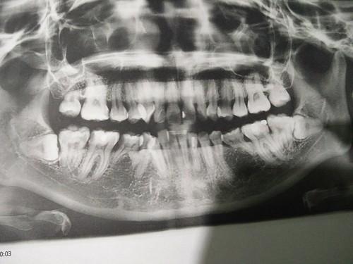 X-Ray of my teeth taken at Klinik Pergigian Dr Shal