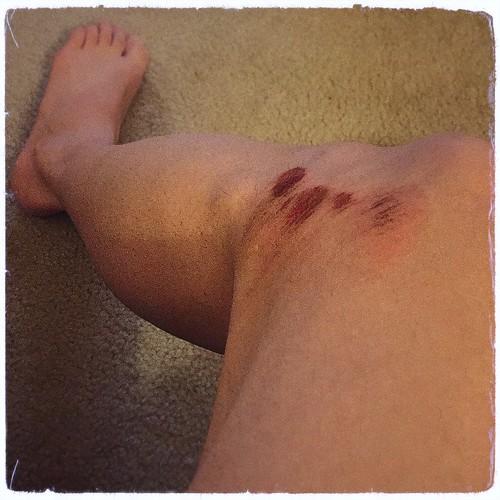 Guard rail rash