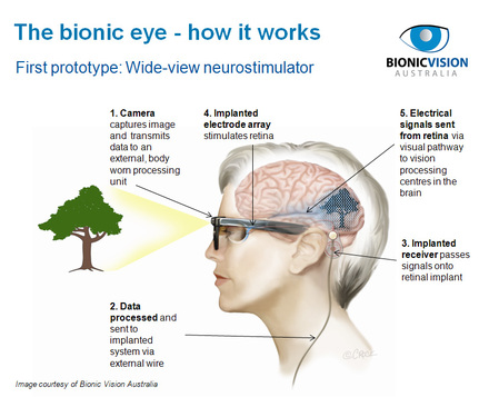 Bionic Vision The Fight For Sight