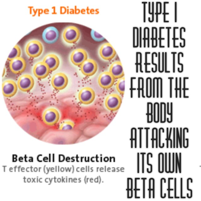 diabetes happens when the body attacks its own beta cells