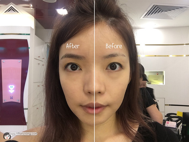 Allure Beauty Eyebrow Embroidery Before After