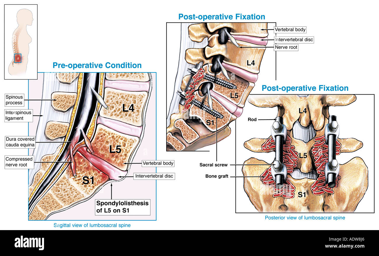 l4 nerve pain diagram wiring for an electric fuel pump and relay xlink at wot p1515 page 2 performancetrucks forums spinal fusion surgery l5 s1 spondylolisthesis with