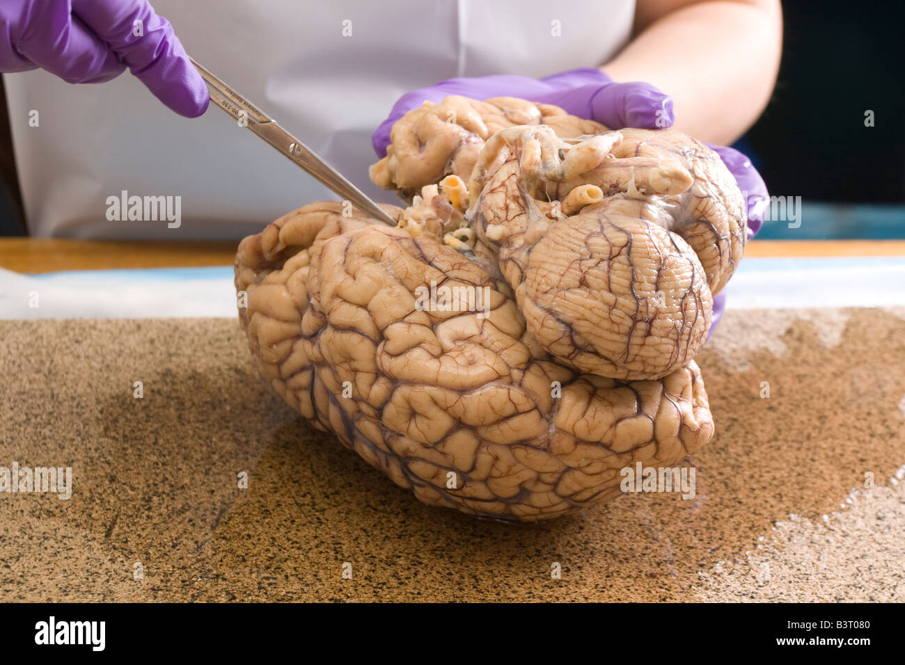 Dissection Of Human Brain Stock Photo Royalty Free Image
