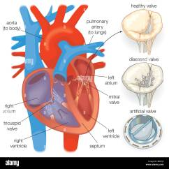 Healthy Heart Diagram 1986 Chevy Truck Starter Wiring Showing A Valve Compared With
