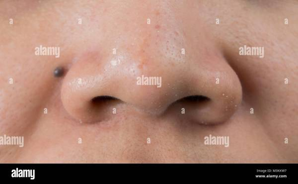 20+ Huge Blackheads On Nose Pictures and Ideas on Meta Networks