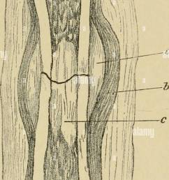 diagram of union of fracture in the tibia of the dog a outer callus b periosteum c inner callus d in flammatory deposit  [ 848 x 1390 Pixel ]