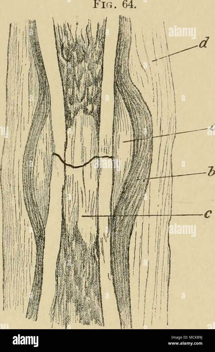 hight resolution of diagram of union of fracture in the tibia of the dog a outer callus b periosteum c inner callus d in flammatory deposit