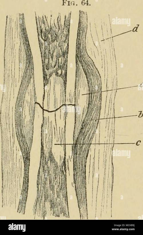 small resolution of diagram of union of fracture in the tibia of the dog a outer callus b periosteum c inner callus d in flammatory deposit