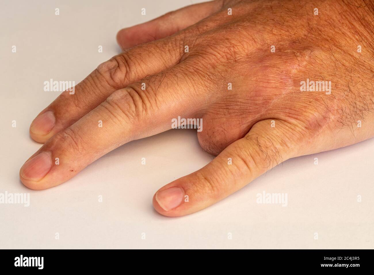 Left Hand With Third Finger Removed Stock Photo Alamy