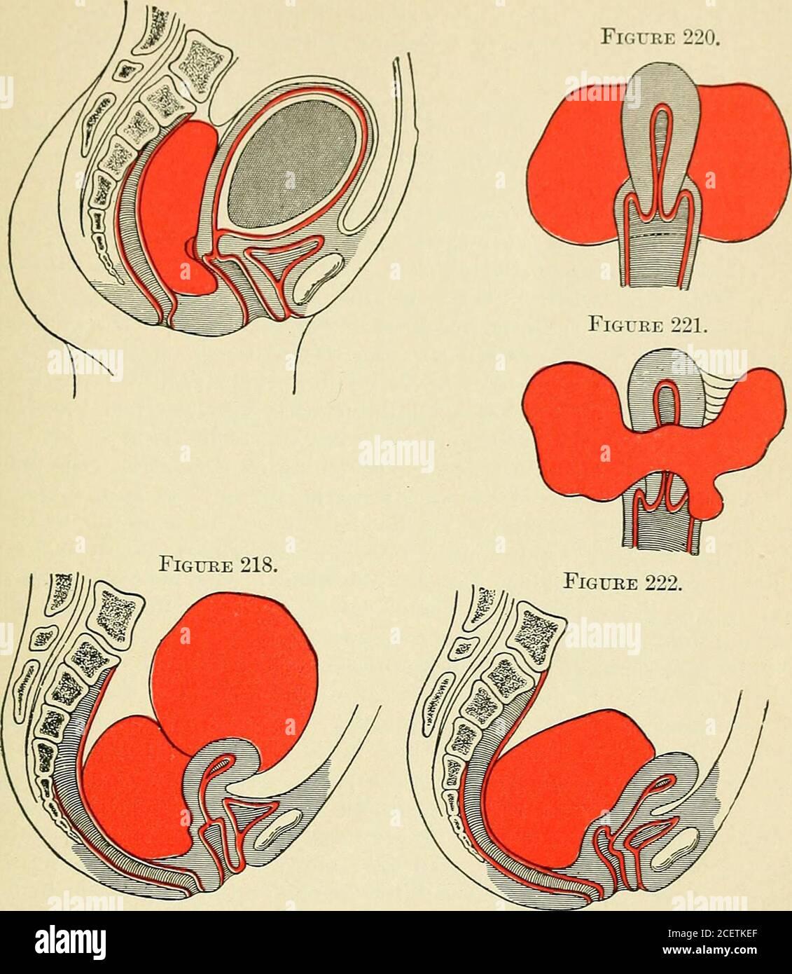 Cul-de-sac De Douglas : cul-de-sac, douglas, Principles, Practice, Gynecology, Students, Practitioners., Haematocele, Lifting, Peritoneum, Cul-de-sac, Douglas,, Extending, Broad, Ligaments., Easily