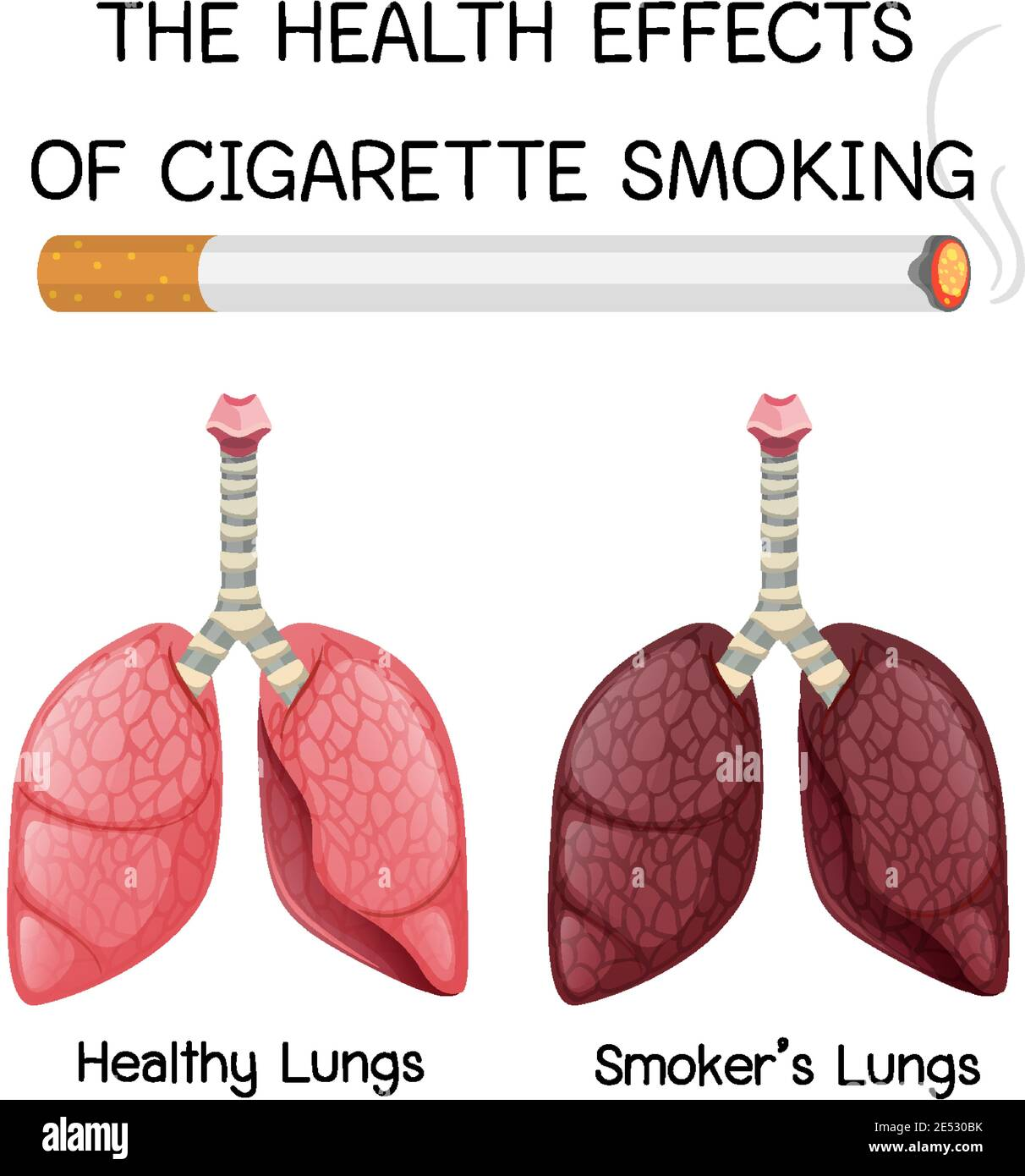 https www alamy com poster on health effects of cigarette smoking illustration image398977927 html