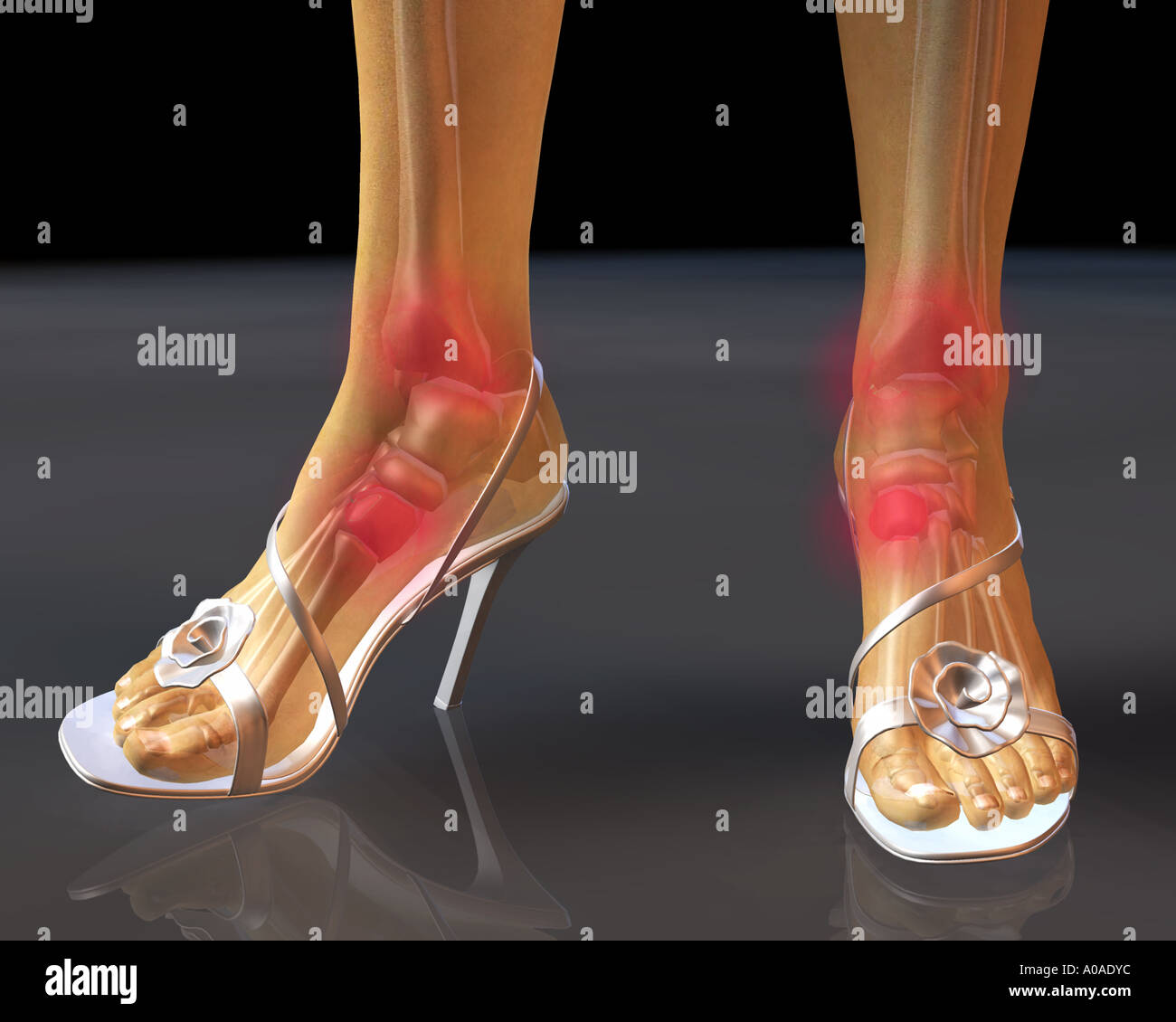 hight resolution of illustrative diagram showing potential hot spots in skeletal structure of feet when wearing high heel shoes