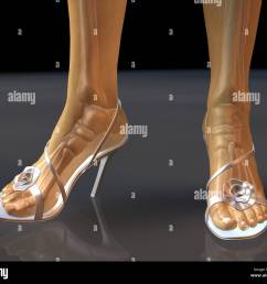 illustrative diagram showing female feet and legs in high heel shoes with skeleton showing through transluscent skin [ 1300 x 1130 Pixel ]