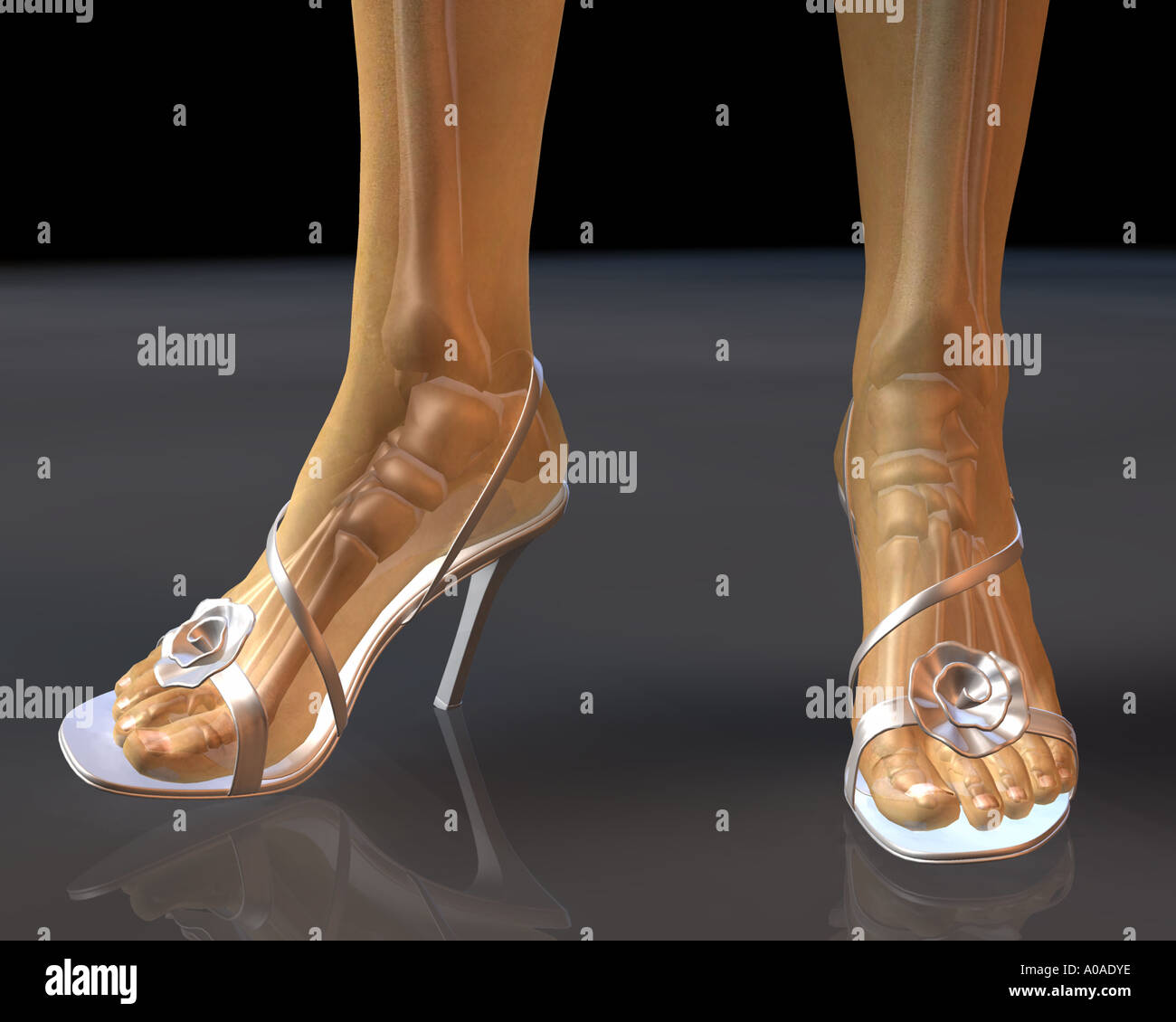 hight resolution of illustrative diagram showing female feet and legs in high heel shoes with skeleton showing through transluscent skin