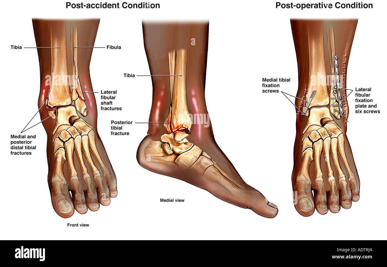 Left Ankle Trimalleolar Ankle Fractures with Subsequent Surgical Stock Photo: 7710051 - Alamy