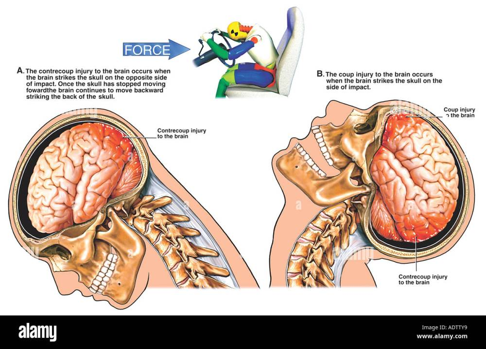 medium resolution of traumatic brain injury closed head injury coup and contrecoup