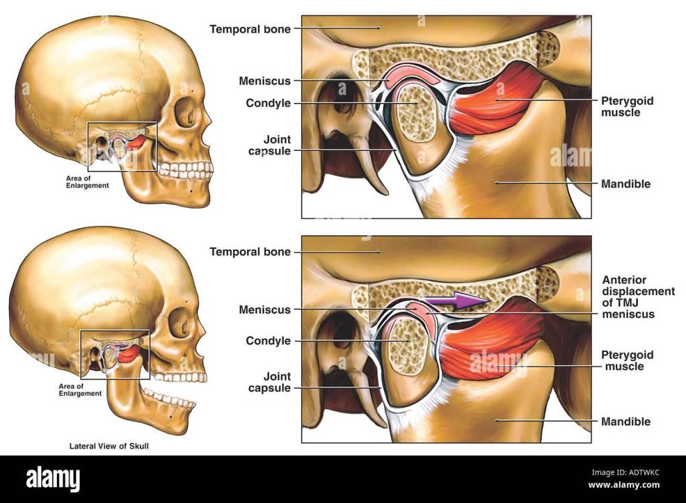 medium resolution of anterior displacement of the right temporomandibular joint tmj