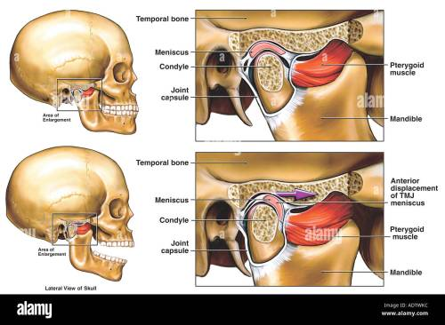 small resolution of anterior displacement of the right temporomandibular joint tmj