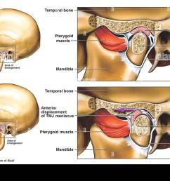 anterior displacement of the left temporomandibular joint tmj  [ 1300 x 974 Pixel ]