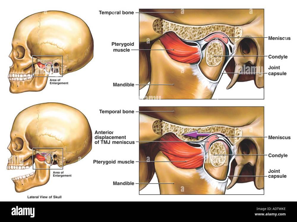 medium resolution of anterior displacement of the left temporomandibular joint tmj